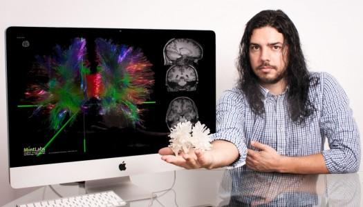 """Antigo aluno da UMinho cria """"Google Maps do cérebro"""""""